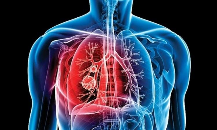 La tuberculosis a medida que pasa el tiempo